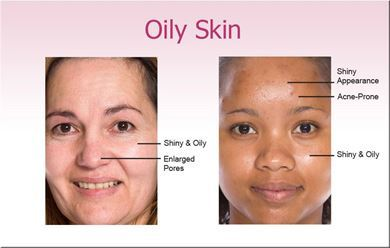 Picture for category Oily Skin