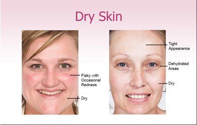 Picture for category Dry Skin