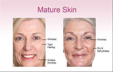 Picture for category Mature Skin