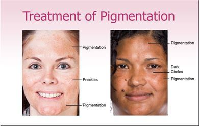 Picture for category Treatment of Pigmentation