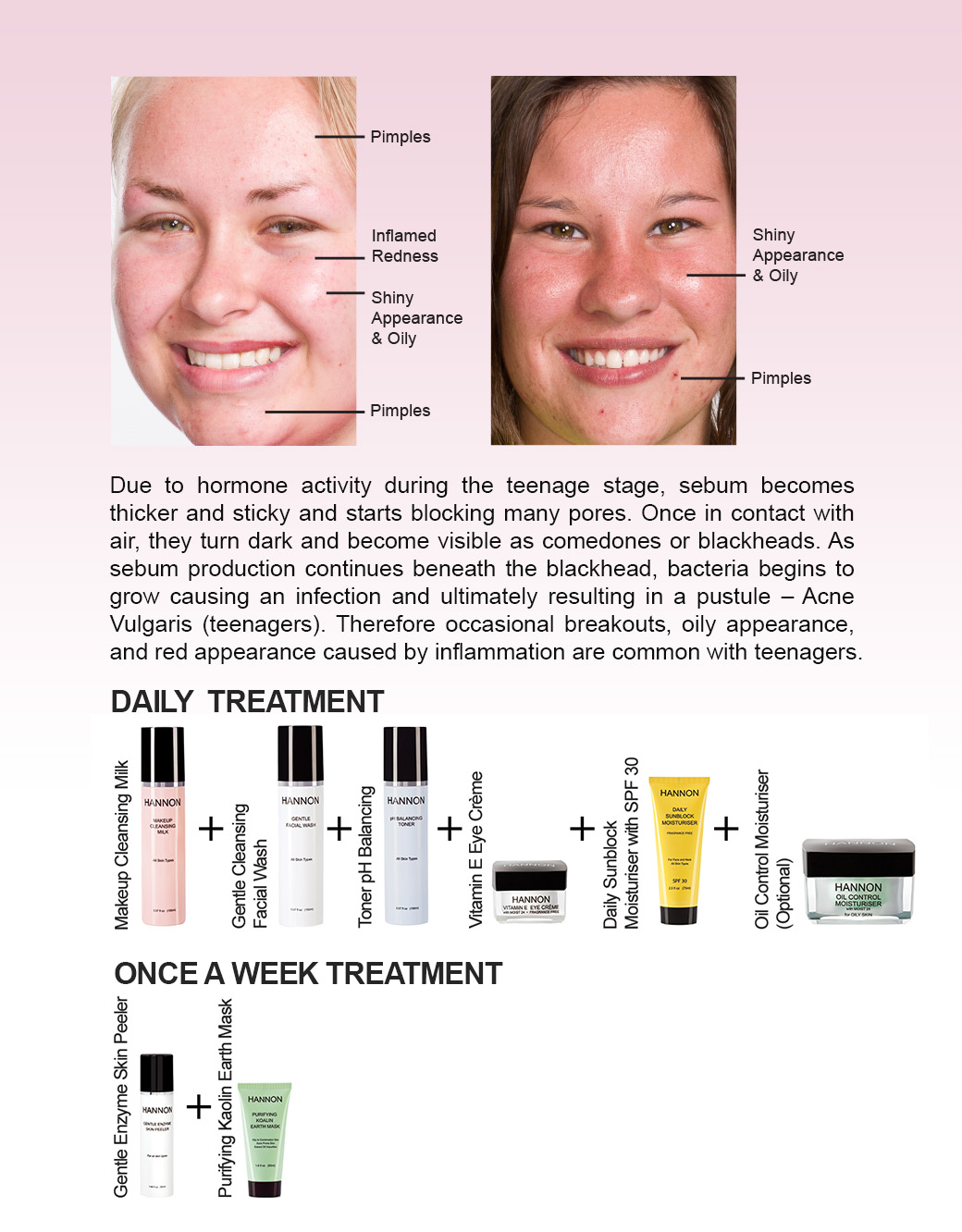 mature acne prone skin